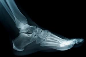 podologo segovia el espinar radiologia